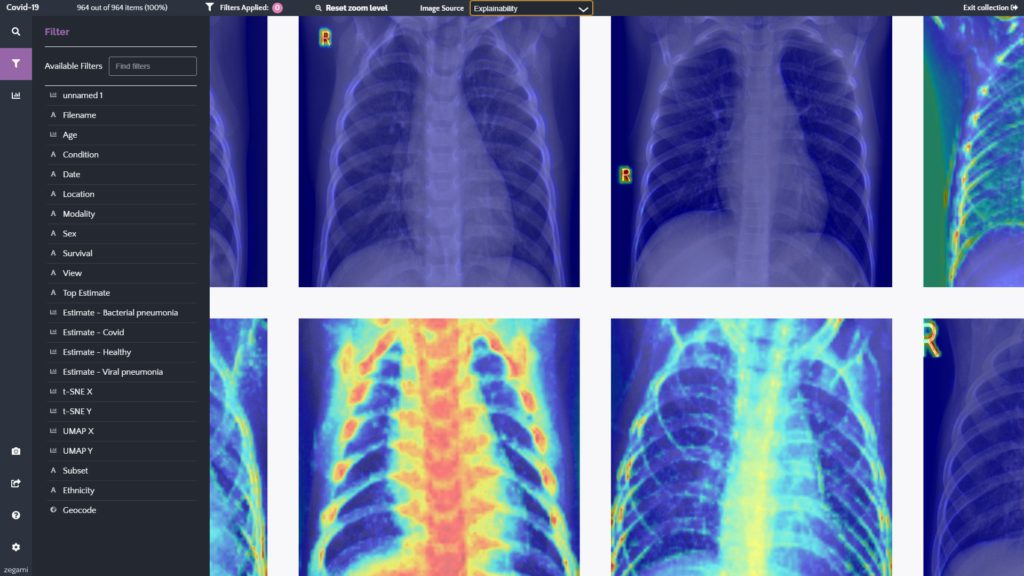 Heatmap of chest x-rays highlighting machine learning model performance